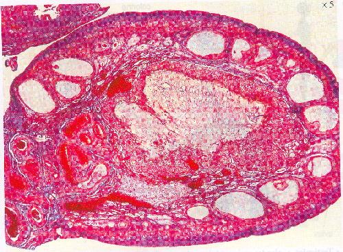 ovaire microscope